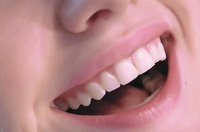 Pour de belles dents, un brossage quotidien et un détartrage régulier s'impose !